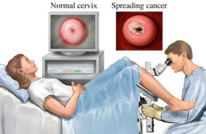 Микроскопия что это такое в гинекологии