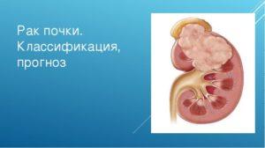 Рак почки мкб
