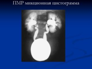 Гидронефроз почки у ребенка 3 лет