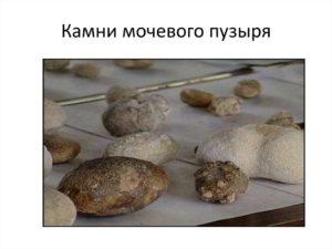 Из за чего образуются камни в мочевом пузыре