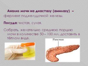Что такое диастаза в моче