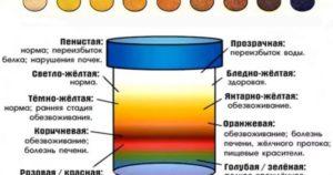 Моча цвета чая почему