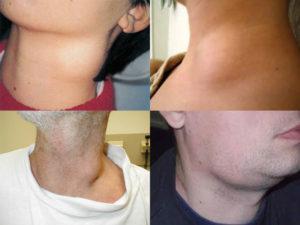 Воспаление лимфоузлов при пиелонефрите