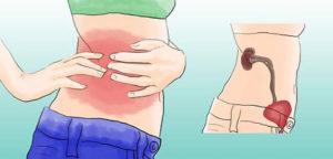Болят почки болезненное мочеиспускание
