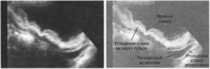 Утолщение задней стенки мочевого пузыря у женщин