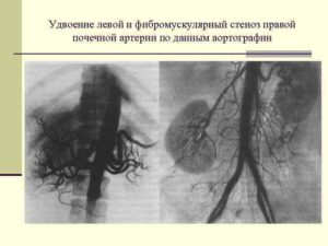 Удвоение артерий почек