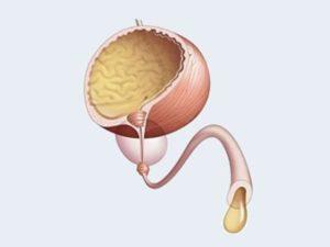Отсутствие поступления мочи в мочевой пузырь