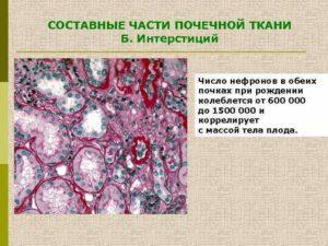 Что такое интерстициальная ткань почки