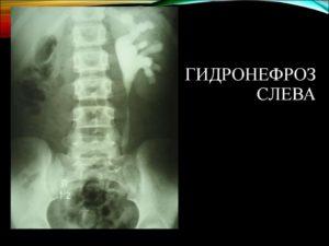 Левосторонний гидронефроз лечение