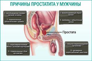 Причины простатита у мужчин в 30 лет