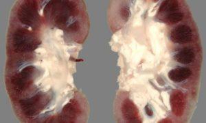 Может ли пиелонефрит перейти в гломерулонефрит