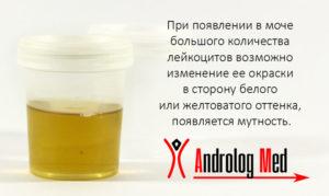 В моче повышены лейкоциты как лечить