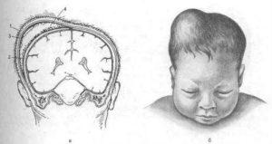 Асимметрия почек у новорожденного
