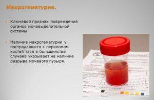 Кровь в моче лечение