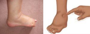 Почечные отеки ног