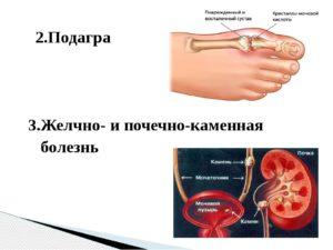 Мочекаменная болезнь и подагра