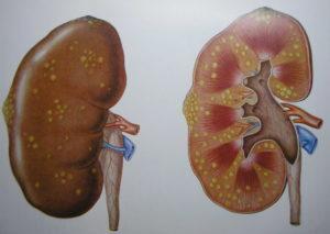 Цистит на фоне мочекаменной болезни