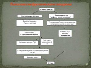 Патогенез отеков при нефротическом синдроме