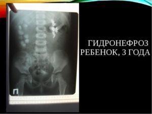 Гидронефроз 2 степени левой почки у ребенка