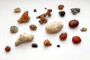Что делать когда выходят камни из почек