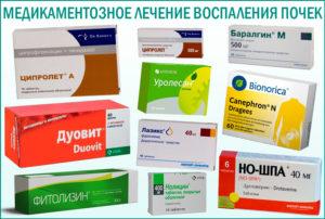Воспаление почек какие таблетки пить