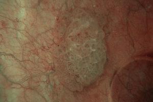 Папиллярный рак мочевого пузыря прогноз
