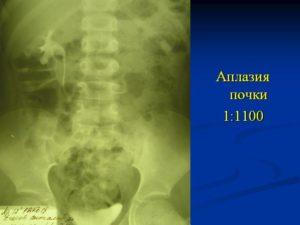Аплазия почек у детей