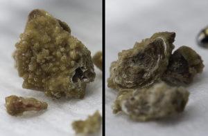 Размер камней в почках которые могут выйти сами