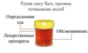 Фуразолидон окрашивает мочу в желтый цвет