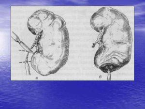 Врожденный гидронефроз операции