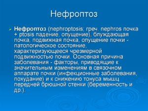 Нефроптоз правой почки 3 степени лечение