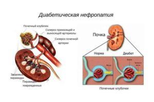 Чем поддержать почки при диабете