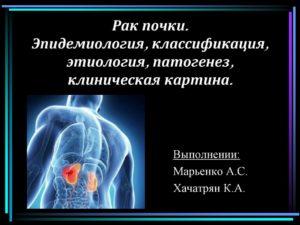 Рак почки эпидемиология