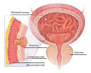 Метастазы в мочевом пузыре прогноз