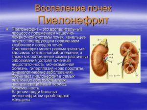 Воспаление почек пиелонефрит