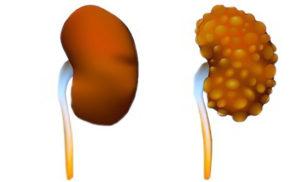 Кистозная дисплазия почки плода