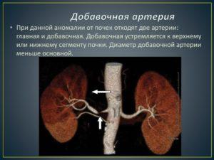 Добавочные артерии в почках