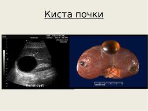 Анэхогенная киста почки лечение