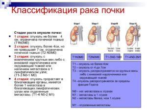 Рак почек 3 стадия сколько живут