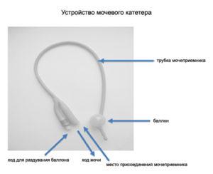 Как правильно промывать катетер из мочевого пузыря