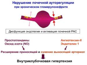 Артериальная гипертензия при хроническом гломерулонефрите