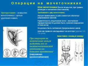 Операция на мочеточнике