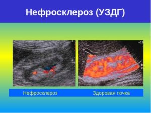 Нефросклероз почек на узи