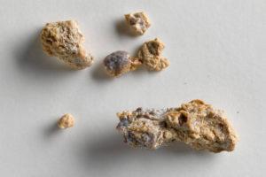 Препарат растворяющий крупные камни в почках