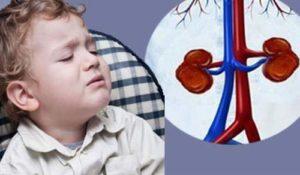 Гипотония почек у ребенка