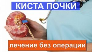 Лечение кисты на почке без операции