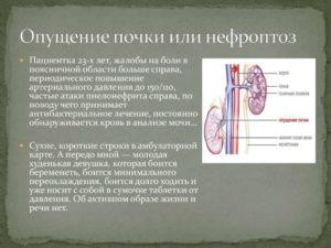 Что делать при нефроптозе почки