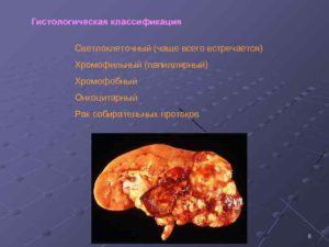 Хромофобный рак почки последствия