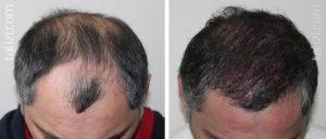 После пересадки почки выпадают волосы