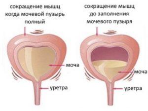 Ощущение постоянно полного мочевого пузыря у женщин